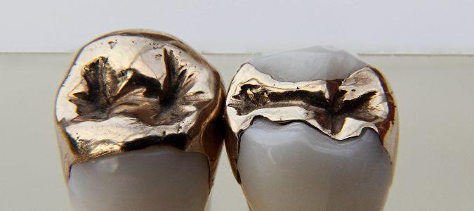 Dentaal goud